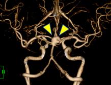 脳底動脈先端部未破裂脳動脈瘤